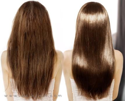 Bareks le shampooing contre la chute des cheveux