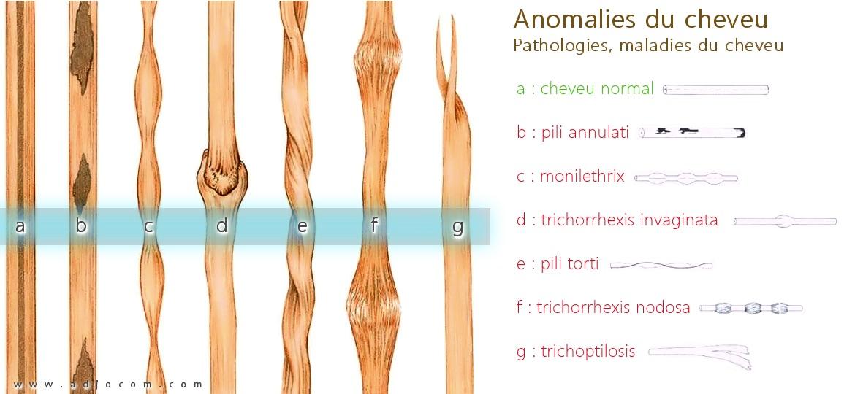 Les vitamines pour les cheveux de la peau et les ongles de la photo